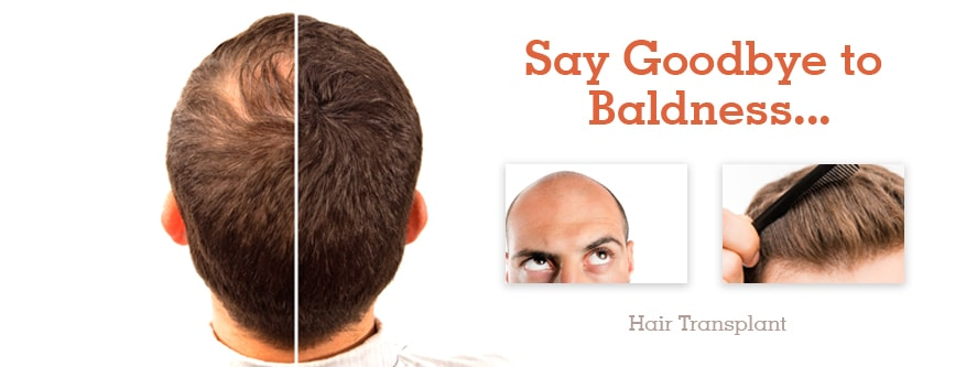 Real Hair Transplant Results done at Dezire Clinic Pune