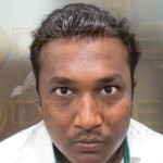 Restore Hair Procedure