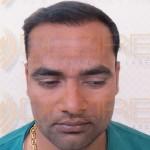 Restore Hair Treatment in Pune, India