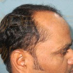 Restore Hair Treatment in Pune near