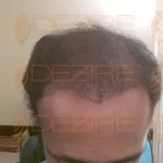 best doctor for hair fall treatment in pune