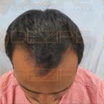 best hair transplant in pune