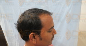 best place for hair transplant in the world