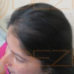 female pattern baldness cure
