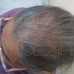 female pattern baldness hairstyles