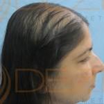 female pattern hair loss reversible