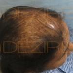female pattern hair loss success stories