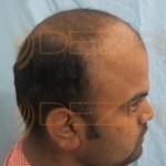 fut hair transplant side effects
