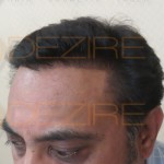 hair grafting cost