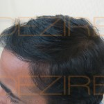 hair regrowth is possible or not