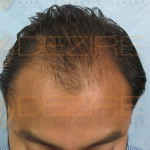 hair transplant before and after 1500 grafts