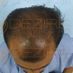 hair transplant before and after 2000 grafts
