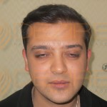 hair transplant cost in Pune in rupees