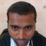 hair transplant progress pictures