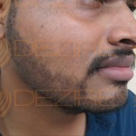 hair transplant recovery pictures
