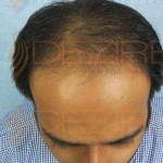 hair transplant results month by month