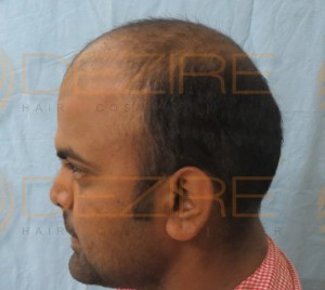 hair transplant safe or not
