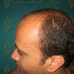 hair transplantation cost in indian rupees
