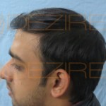 how long after hair transplant for hair to grow