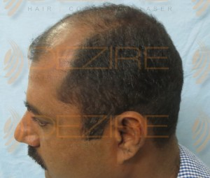 how many prp required after hair transplant