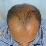 men's hair replacement systems
