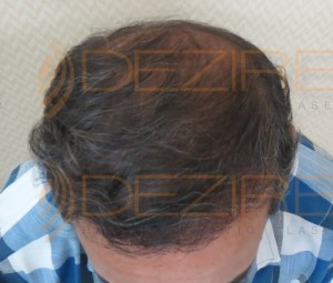 non surgical hair replacement cost in Pune
