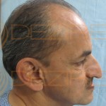 non surgical hair replacement systems