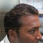 restore hair reviews