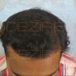 what to expect after hair restoration