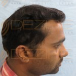 what to expect after hair transplant
