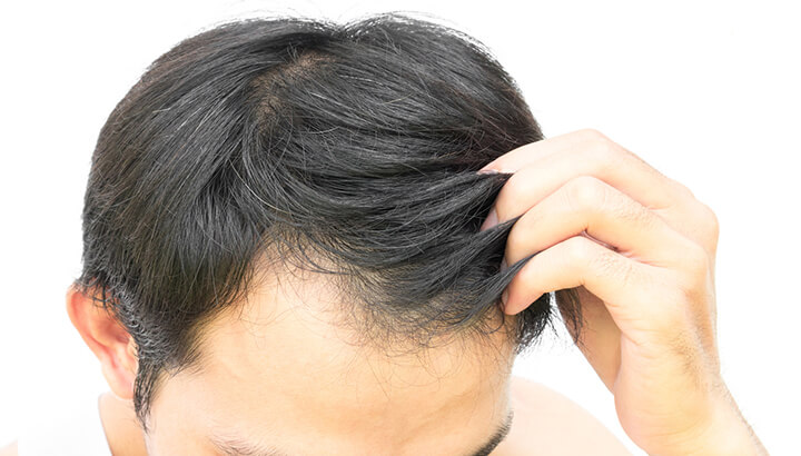Getting a haircut after a hair transplant
